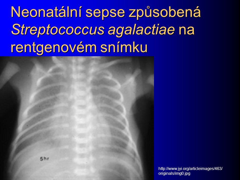 Neonatální sepse způsobená Streptococcus agalactiae na rentgenovém snímku