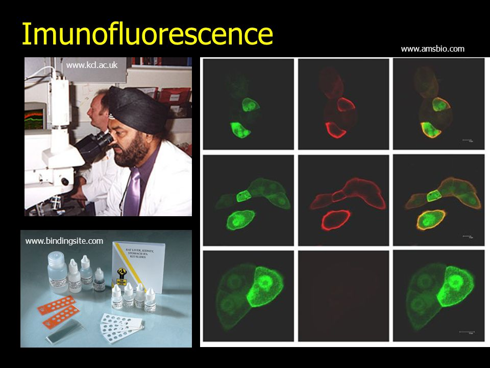 Imunofluorescence www.amsbio.com www.kcl.ac.uk www.bindingsite.com