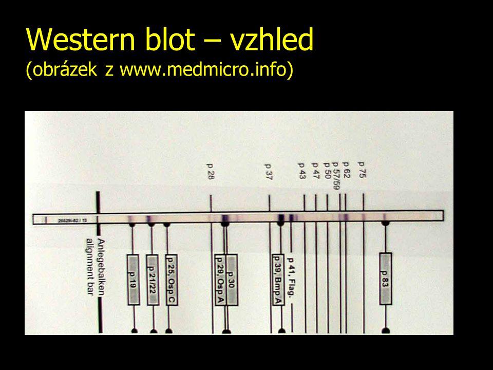Western blot – vzhled (obrázek z www.medmicro.info)