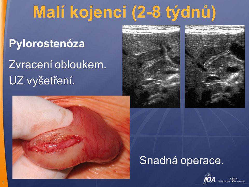 Malí kojenci (2-8 týdnů) Pylorostenóza Zvracení obloukem.