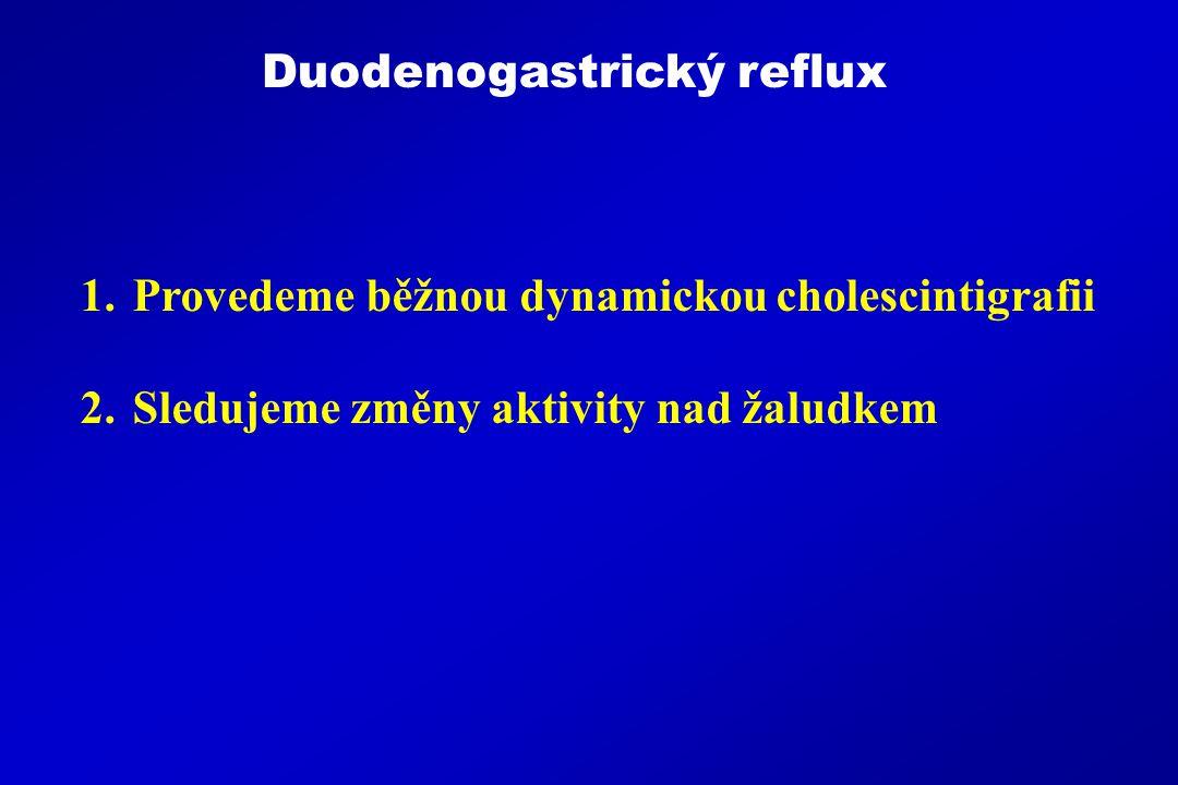 Duodenogastrický reflux