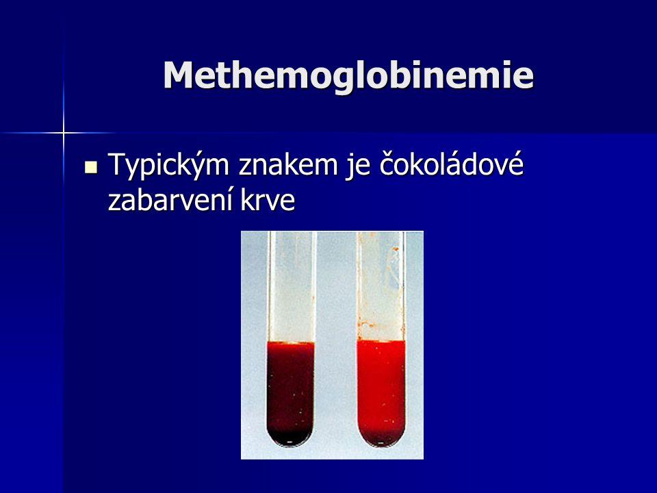 Methemoglobinemie Typickým znakem je čokoládové zabarvení krve