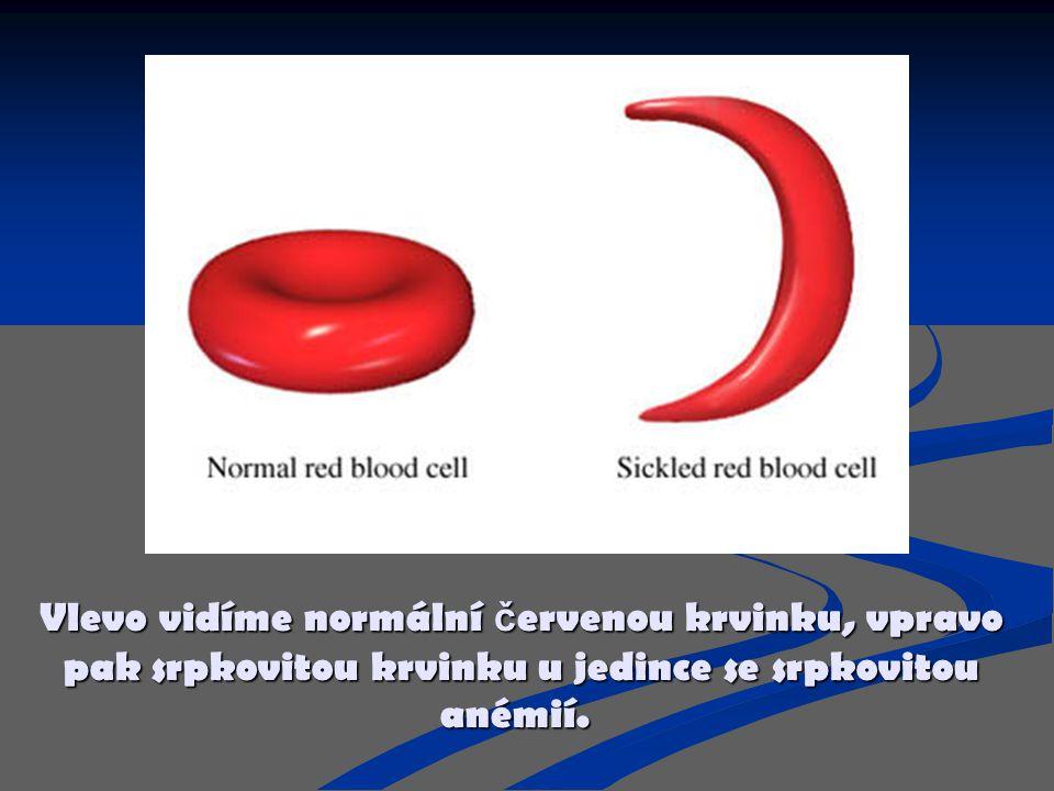 Vlevo vidíme normální červenou krvinku, vpravo pak srpkovitou krvinku u jedince se srpkovitou anémií.