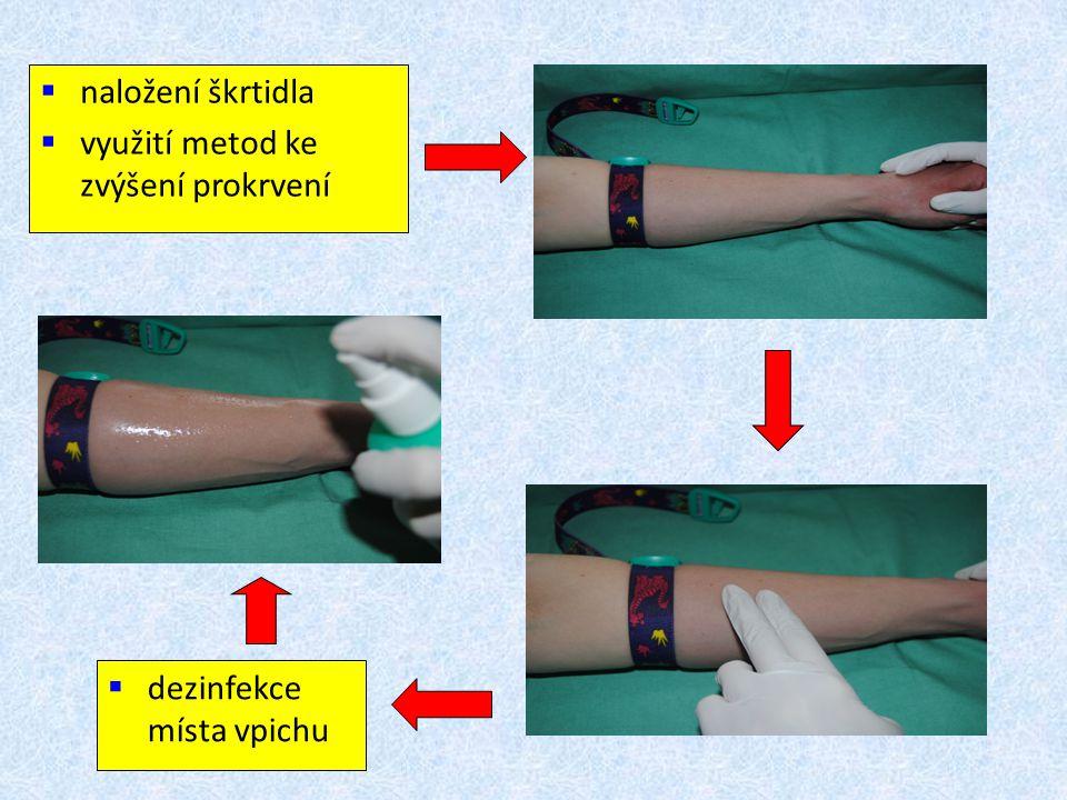 naložení škrtidla využití metod ke zvýšení prokrvení dezinfekce místa vpichu