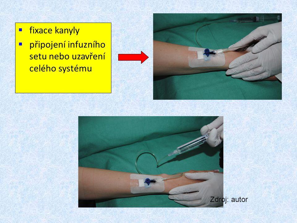 připojení infuzního setu nebo uzavření celého systému