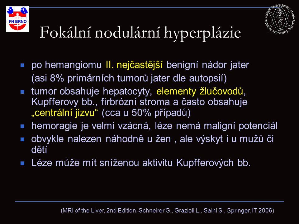 Fokální nodulární hyperplázie