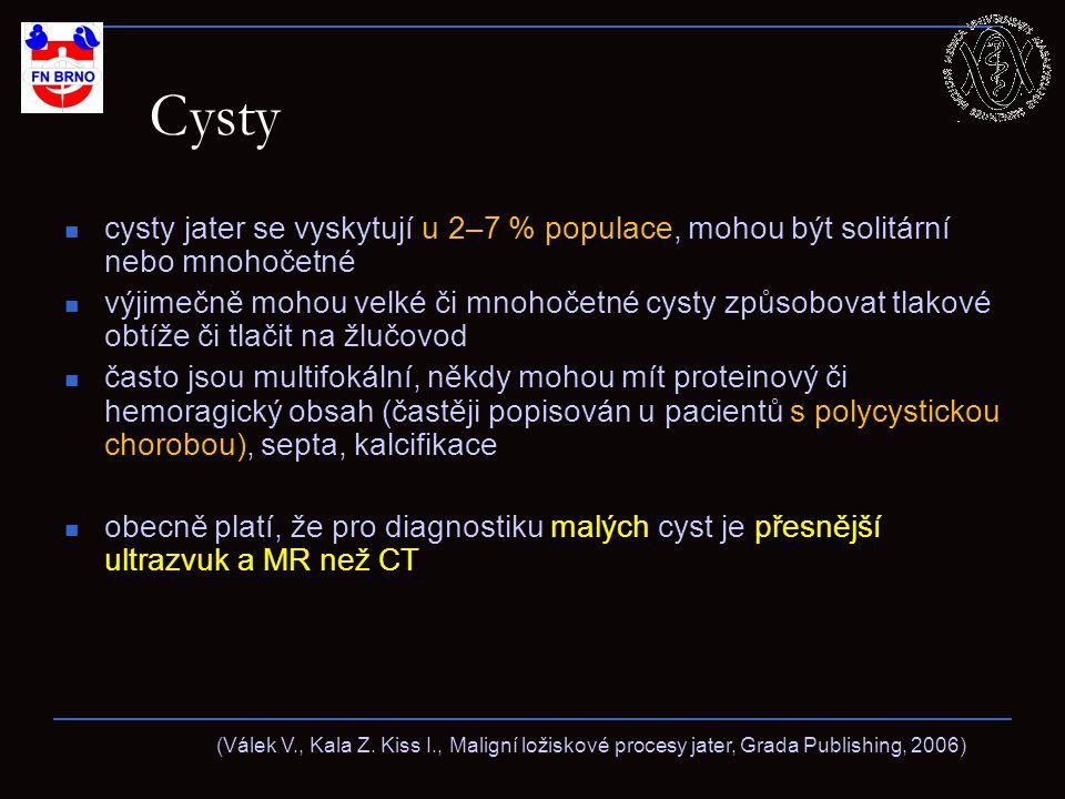 Cysty cysty jater se vyskytují u 2–7 % populace, mohou být solitární nebo mnohočetné.