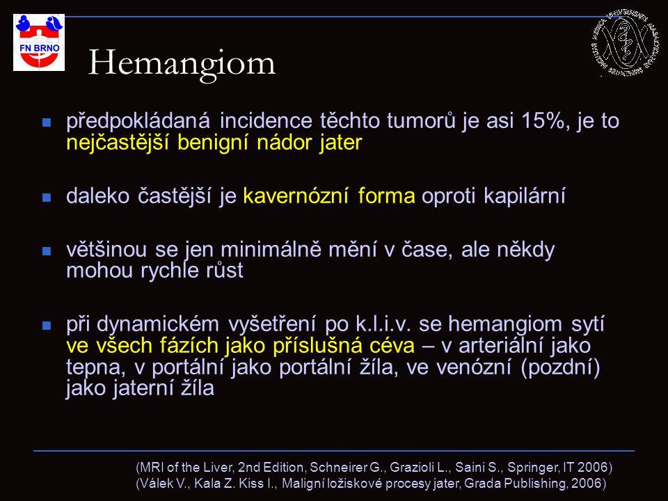 Hemangiom předpokládaná incidence těchto tumorů je asi 15%, je to nejčastější benigní nádor jater.