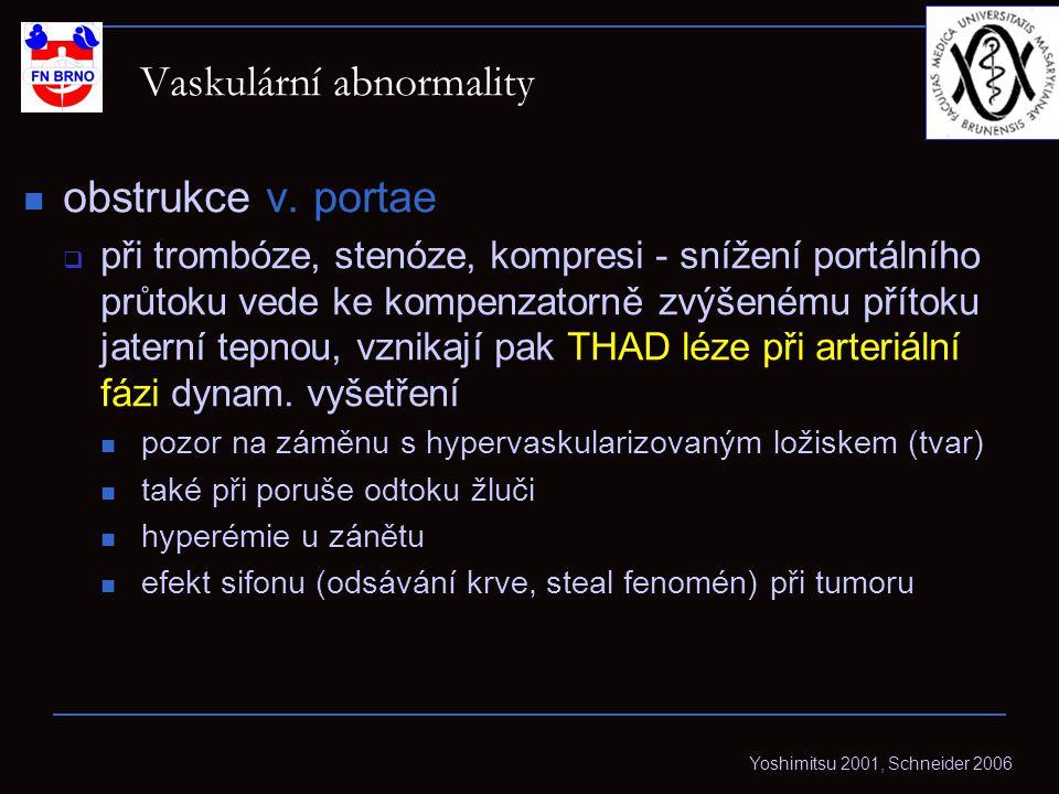 Vaskulární abnormality