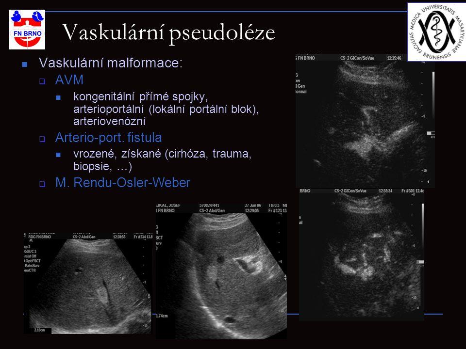 Vaskulární pseudoléze