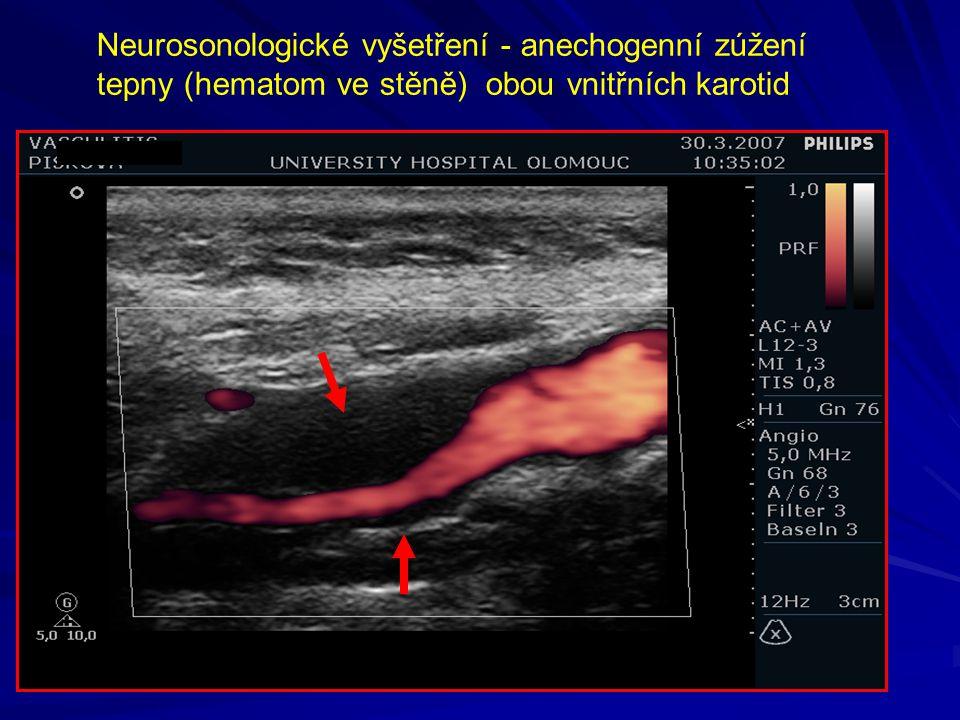 Neurosonologické vyšetření - anechogenní zúžení tepny (hematom ve stěně) obou vnitřních karotid