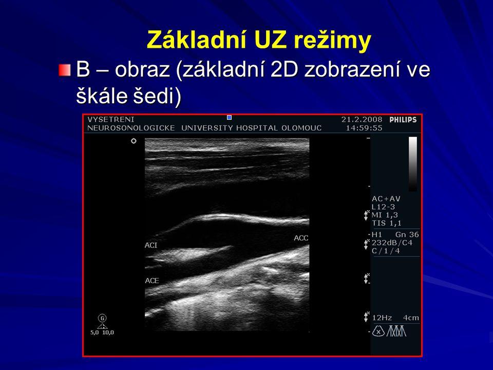 Základní UZ režimy B – obraz (základní 2D zobrazení ve škále šedi)