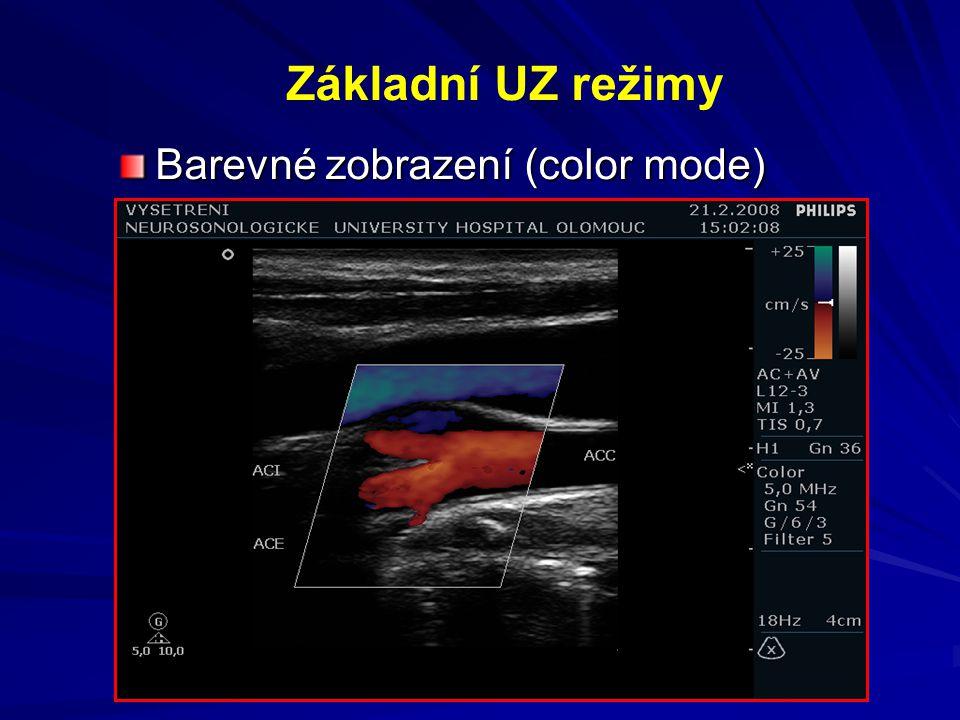 Základní UZ režimy Barevné zobrazení (color mode)