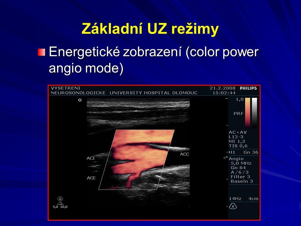 Základní UZ režimy Energetické zobrazení (color power angio mode)
