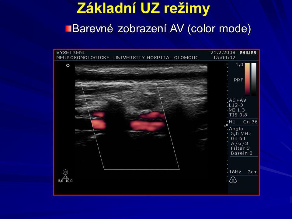 Základní UZ režimy Barevné zobrazení AV (color mode)