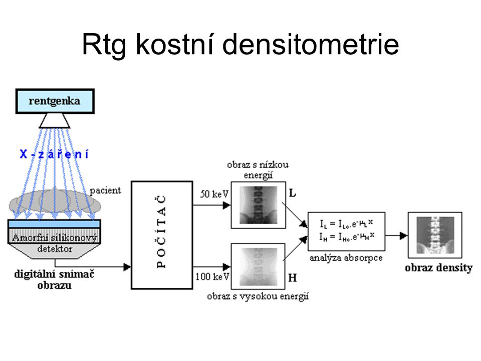Rtg kostní densitometrie