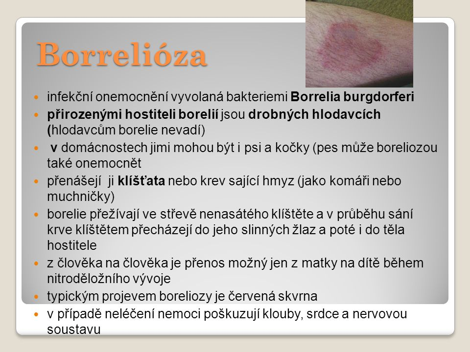 Borrelióza infekční onemocnění vyvolaná bakteriemi Borrelia burgdorferi.