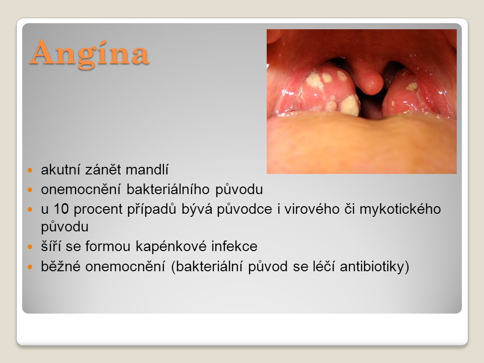 Angína akutní zánět mandlí onemocnění bakteriálního původu
