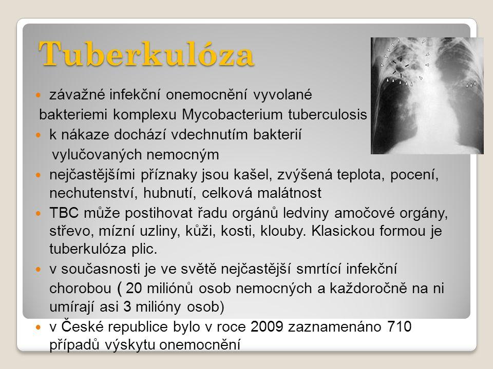 Tuberkulóza závažné infekční onemocnění vyvolané