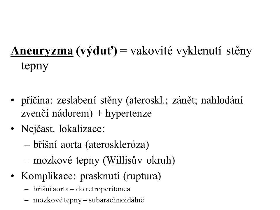 Aneuryzma (výduť) = vakovité vyklenutí stěny tepny