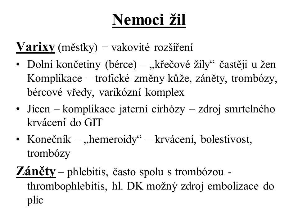 Nemoci žil Varixy (městky) = vakovité rozšíření