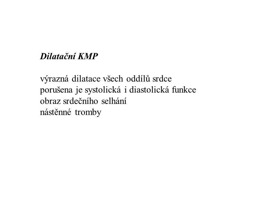 Dilatační KMP výrazná dilatace všech oddílů srdce. porušena je systolická i diastolická funkce. obraz srdečního selhání.