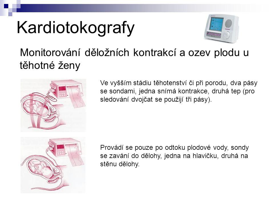Kardiotokografy Monitorování děložních kontrakcí a ozev plodu u těhotné ženy.