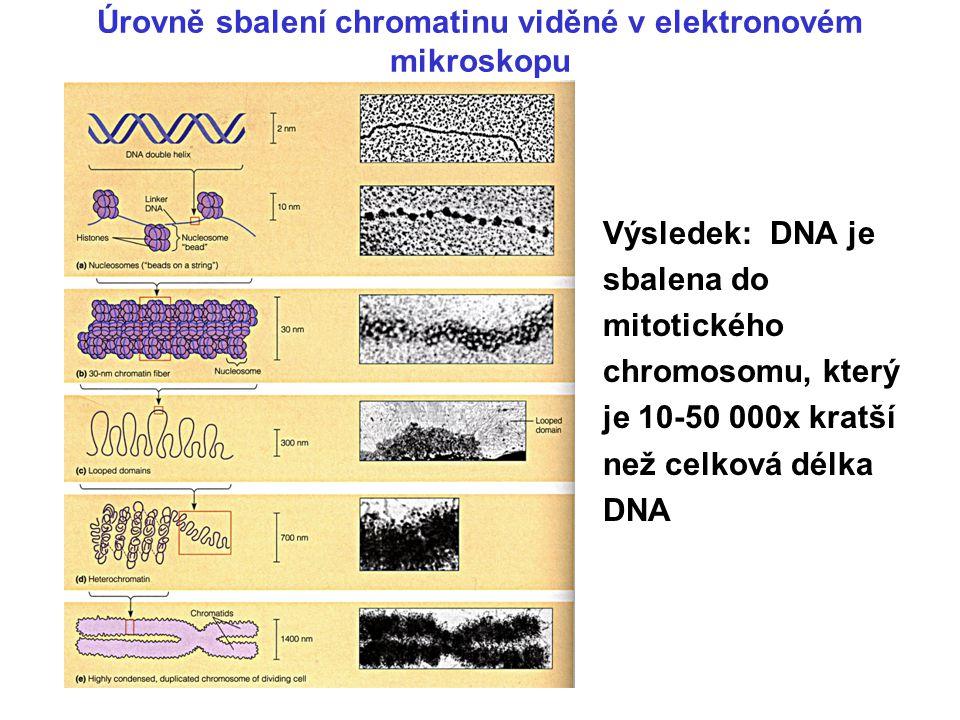 Úrovně sbalení chromatinu viděné v elektronovém mikroskopu