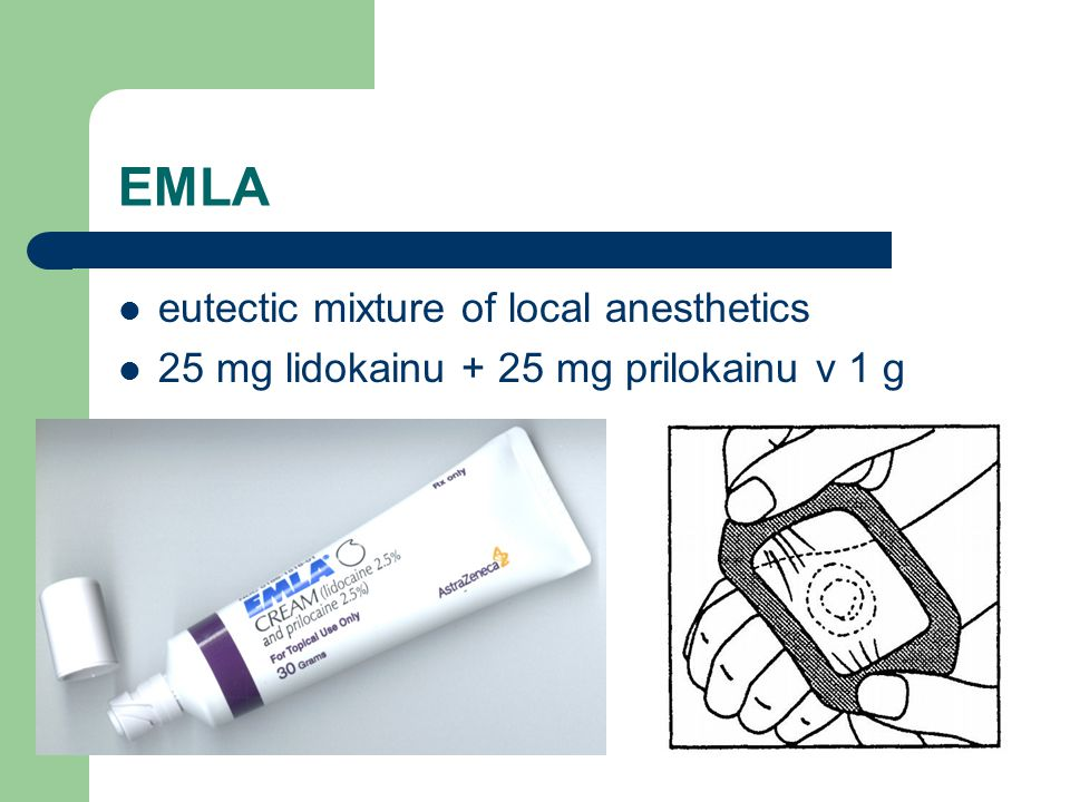 EMLA eutectic mixture of local anesthetics