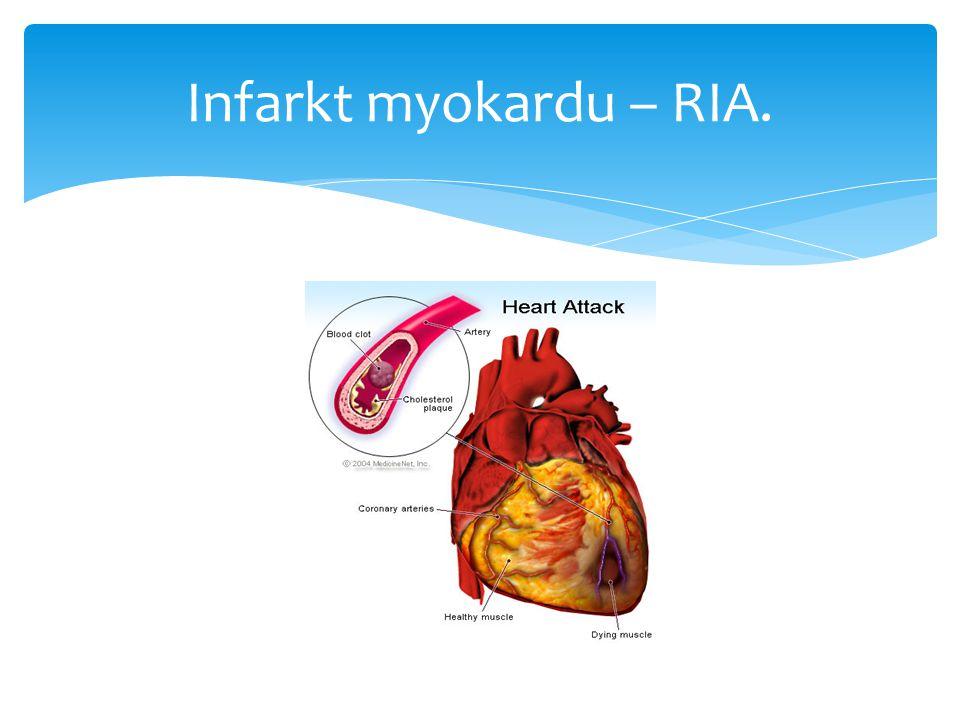 Infarkt myokardu – RIA.