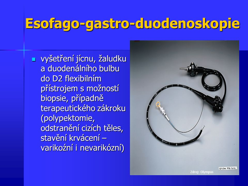 Esofago-gastro-duodenoskopie