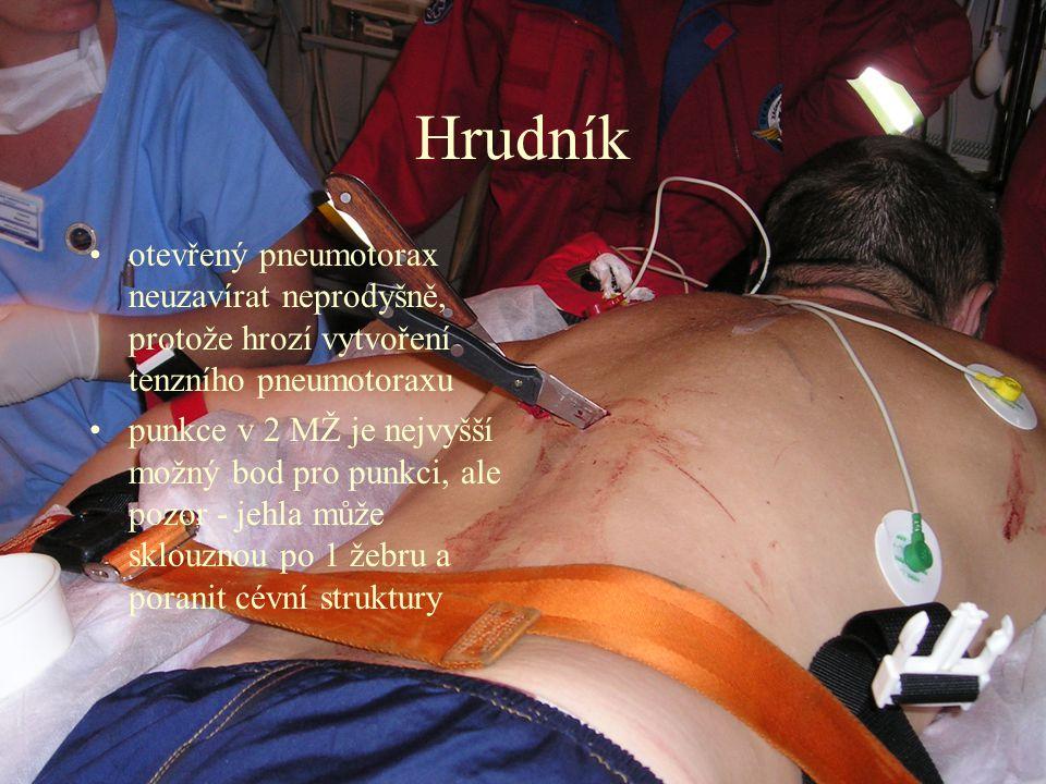 Hrudník otevřený pneumotorax neuzavírat neprodyšně, protože hrozí vytvoření tenzního pneumotoraxu.