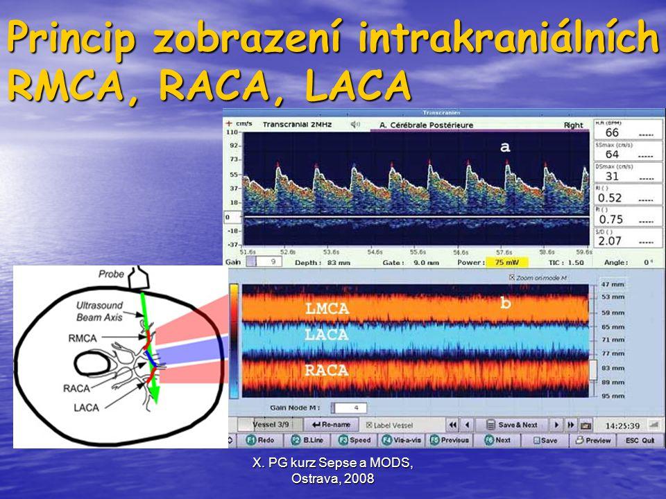 Princip zobrazení intrakraniálních RMCA, RACA, LACA