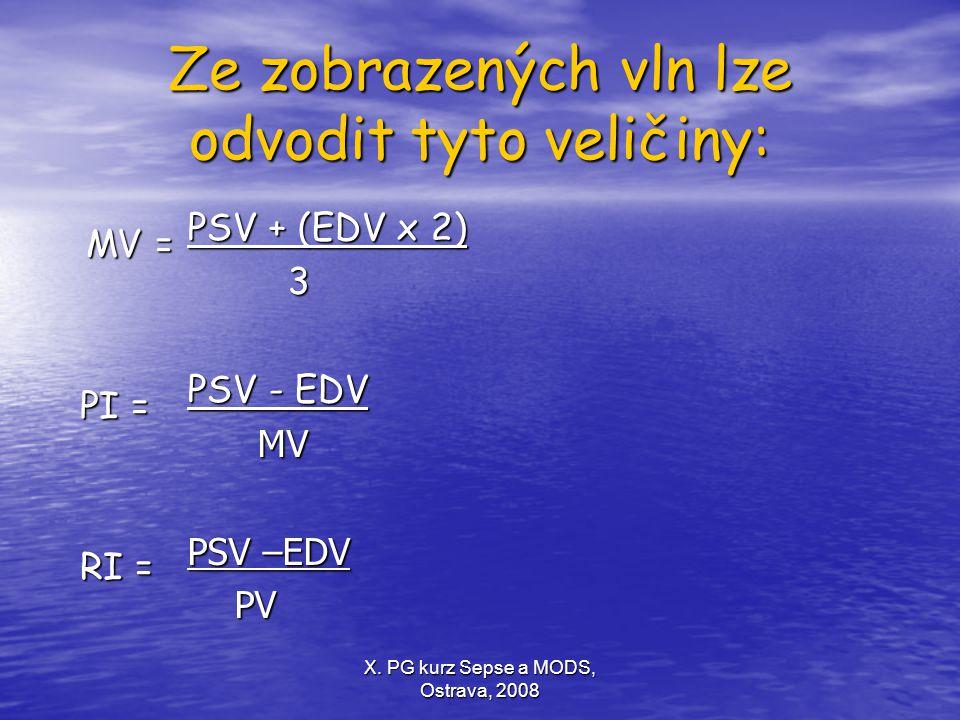 Ze zobrazených vln lze odvodit tyto veličiny: