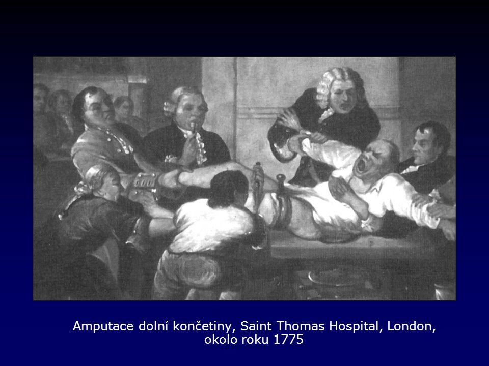 Amputace dolní končetiny, Saint Thomas Hospital, London, okolo roku 1775