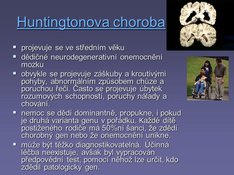 Huntingtonova choroba