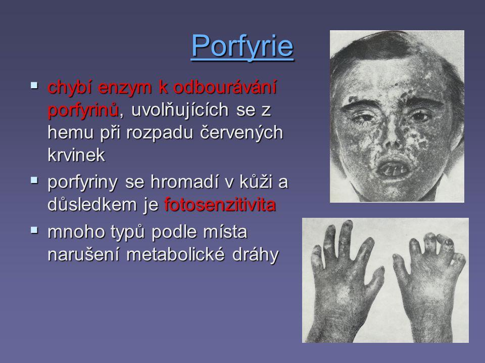 Porfyrie chybí enzym k odbourávání porfyrinů, uvolňujících se z hemu při rozpadu červených krvinek.