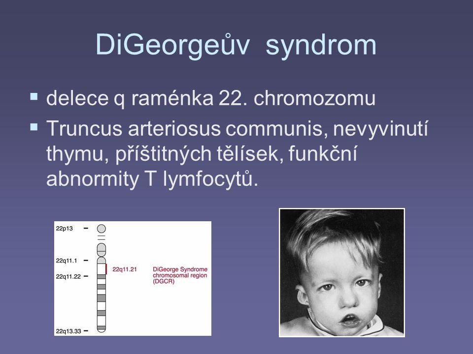 DiGeorgeův syndrom delece q raménka 22. chromozomu