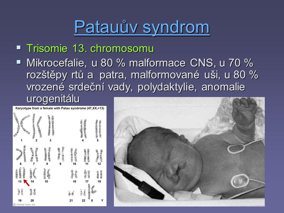 Patauův syndrom Trisomie 13. chromosomu