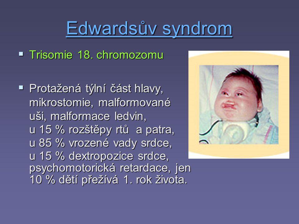 Edwardsův syndrom Trisomie 18. chromozomu