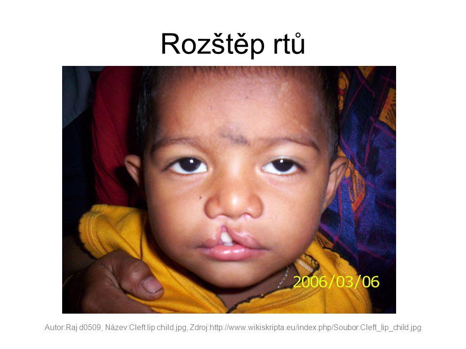 Rozštěp rtů Autor:Raj d0509, Název:Cleft lip child.jpg, Zdroj:http://www.wikiskripta.eu/index.php/Soubor:Cleft_lip_child.jpg.