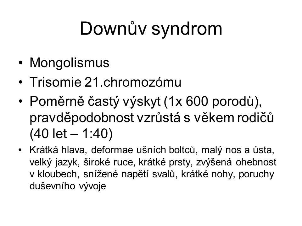 Downův syndrom Mongolismus Trisomie 21.chromozómu