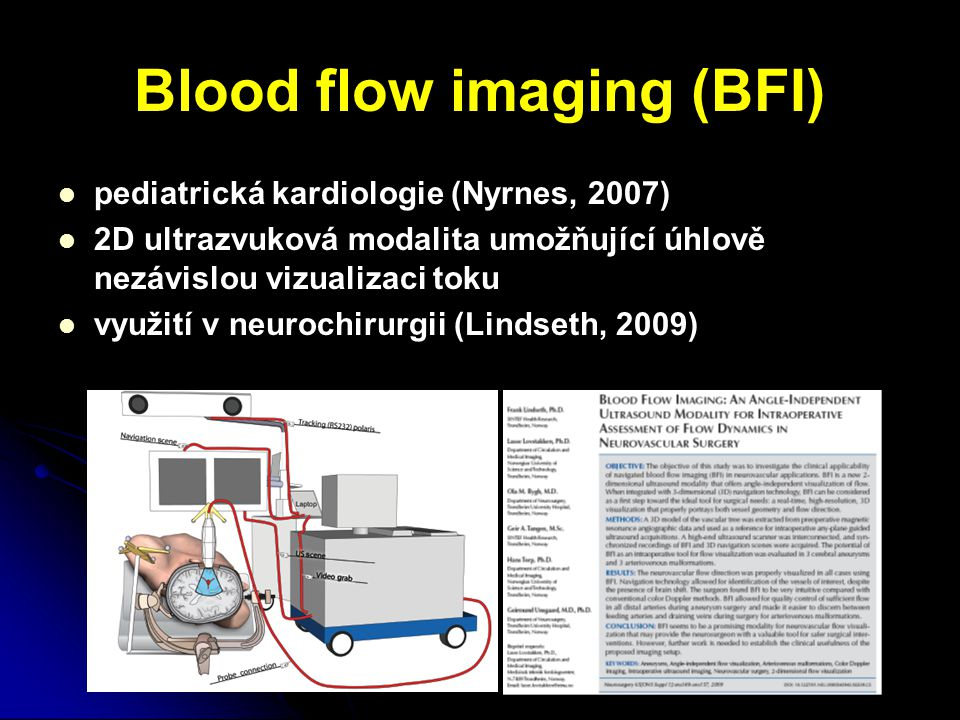 Blood flow imaging (BFI)