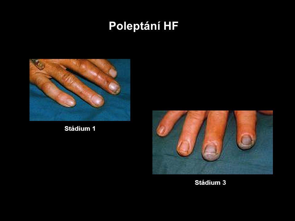 Fluor Poleptání HF Elementární fluor (F2) a fluorovodík (HF)