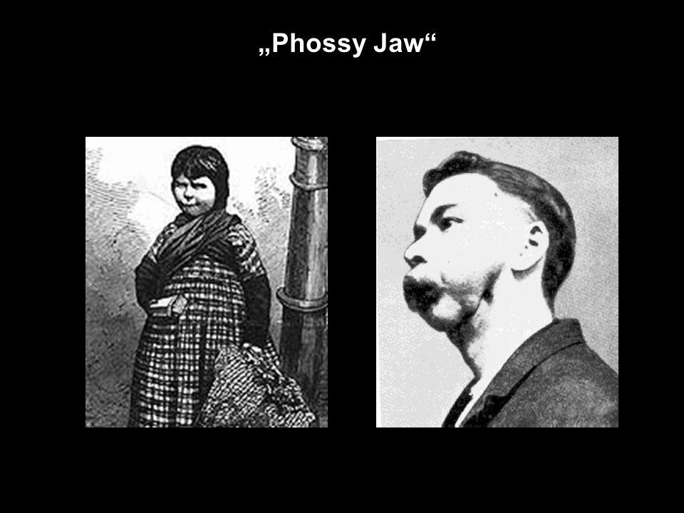 "Fosfor Bílý fosfor - P4 Bílý fosfor - popáleniny ""Phossy Jaw"