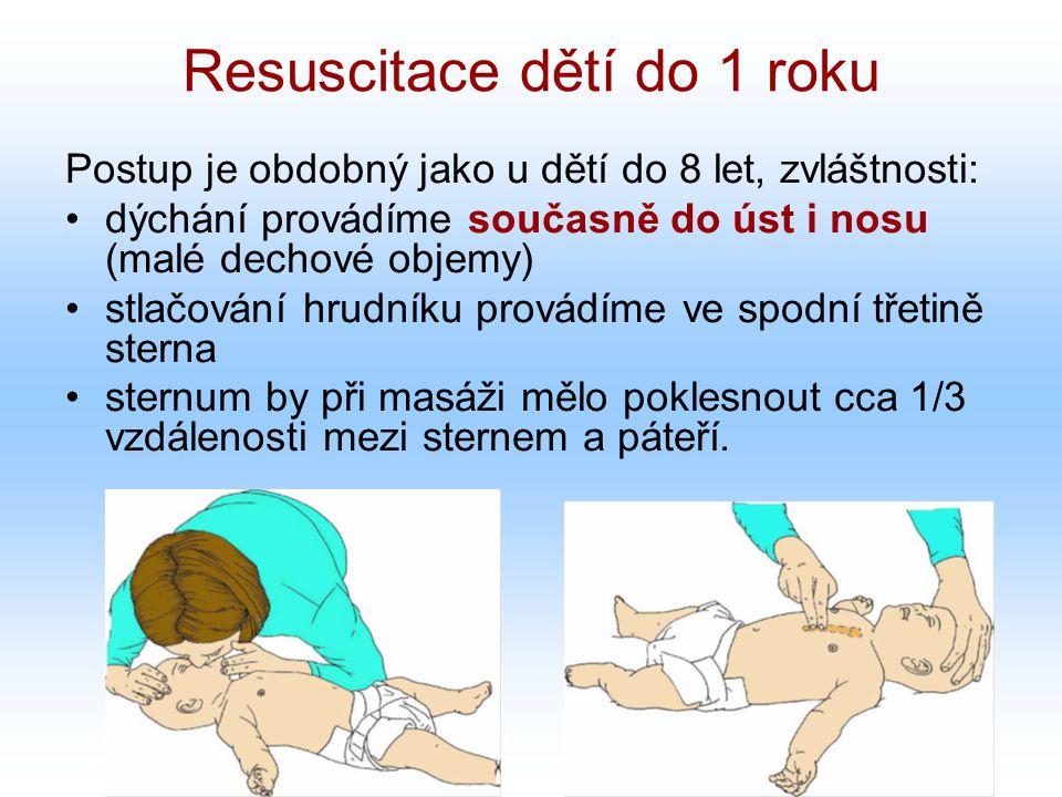 Resuscitace dětí do 1 roku