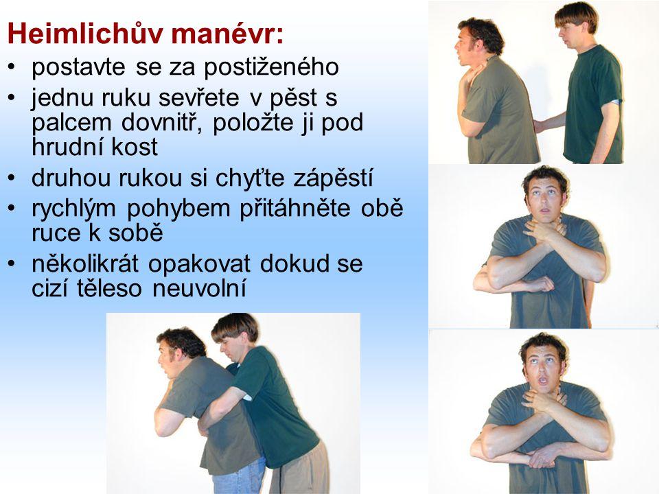 Heimlichův manévr: postavte se za postiženého
