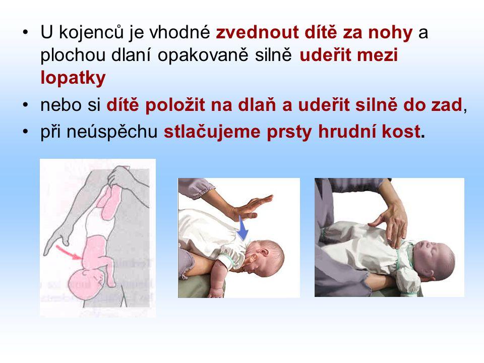 U kojenců je vhodné zvednout dítě za nohy a plochou dlaní opakovaně silně udeřit mezi lopatky