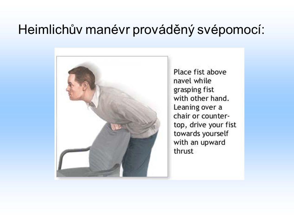 Heimlichův manévr prováděný svépomocí: