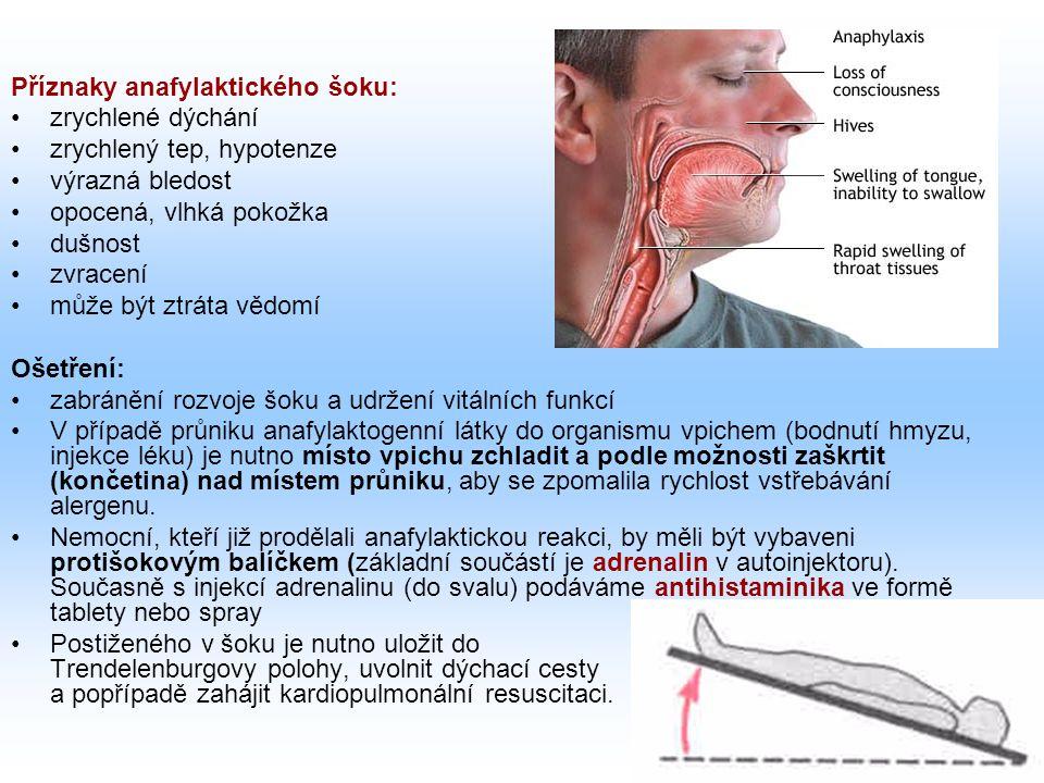 Příznaky anafylaktického šoku: